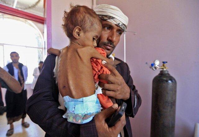 یونیسف:یمن بدترین جای دنیا برای بچه ها، تا انتها 2020 شمار بچه ها یمنی مبتلا به سوءتغذیه به بیش از 2 میلیون می رسد