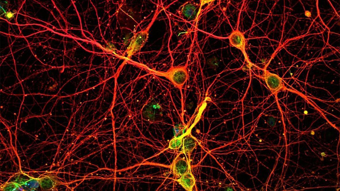 حافظه های گرافنی با عملکردی شبیه به مغز انسان ساخته شد