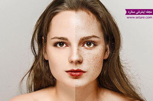 درمان خانگی کک و مک صورت